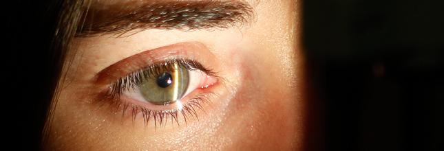 oftalmología -urgencias
