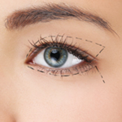 oftalmologos en pamplona, cirujía de párpados
