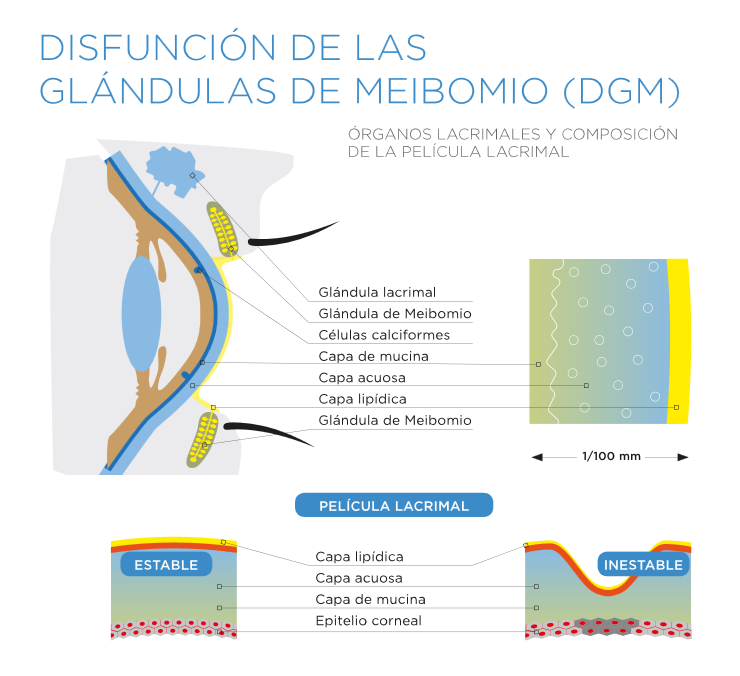 Disfunción de las glándulas de Meibomio